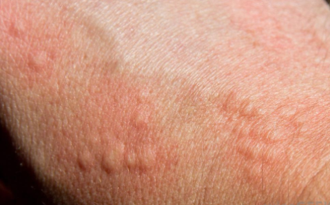 Skin allergy in biotin overdose