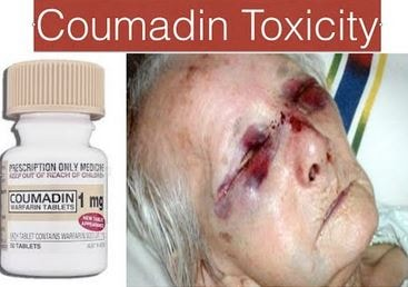 Coumadin Toxicity