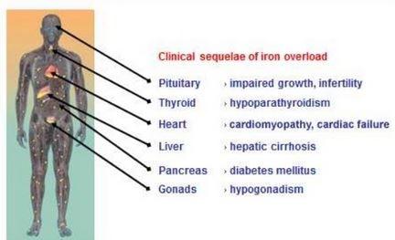 Iron toxicity symptoms