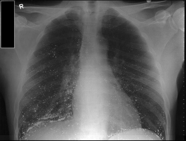 X-ray image of lungs of an individual with mercury toxicity