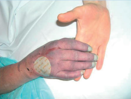 purple glove syndrome phenytoin syndrome